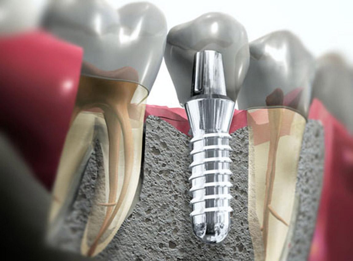 Имплантация зубов в Екатеринбурге: цены и отзывы